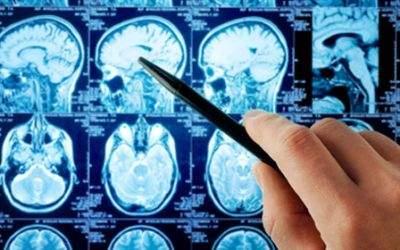 Neurologen